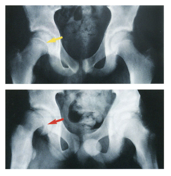 Normal hip joint (above) and slipped capital femoral epiphysis (below).