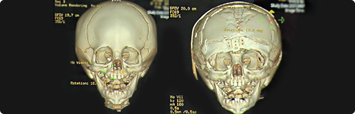 xray images of skulls