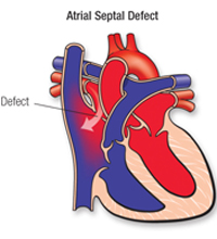 Diagram of atrial septal defect showing the defect