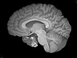 Image that combines data from MRI, fMRI, PET and electrodes placed on the brain