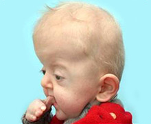 Apert Syndrome Baby