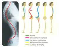 Patterns of sagittal deformity. Normal (green), Scheuermann kyphosis (red); hyperlordosis secondard to hip flexion contracture (blue); flat back (yellow); and thoracic lordosis (brown) with pulmonary compromise. Courtesy of 'Fundamentals of Pediatric Orthopedics,' © 2003 Lippincott Williams & Wilkins