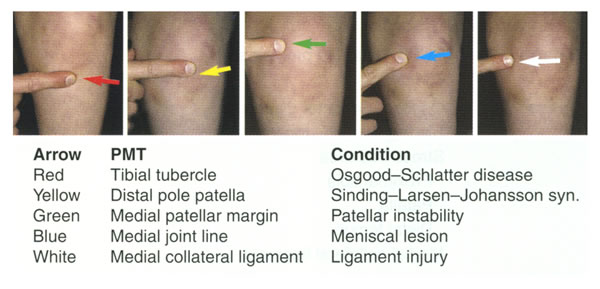 Kneecap tenderness. Courtesy of 'Fundamentals of Pediatric Orthopedics,' © 2003 Lippincott Williams & Wilkins