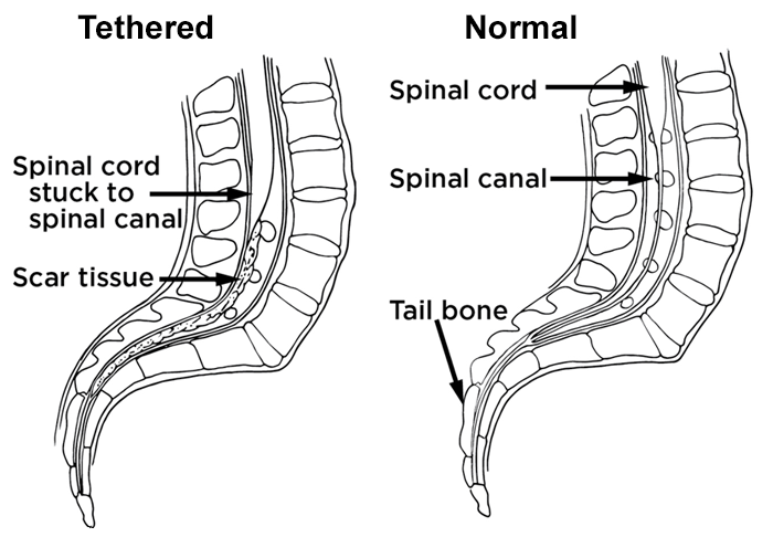 tethered spinal cord full