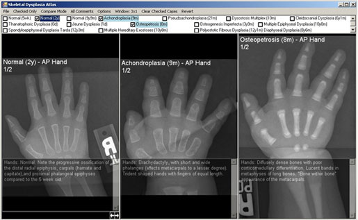 In this example, specific comparisons are being made between a normal hand and two different skeletal dysplasias. Semi-transparent comments are also enabled.