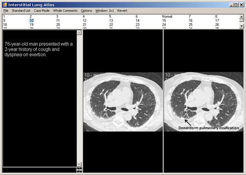 Interstitial Lung Atlas 3